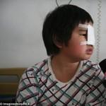 Anak malang ini menjadi buta sebelah karena lalai mengerjakan PR